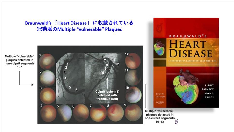"Braunwald's 「Heart Disease」 に収載されている 冠動脈のMultiple ""vulnerable"" Plaques"